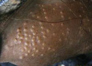 fordyce spots on shaft of penis